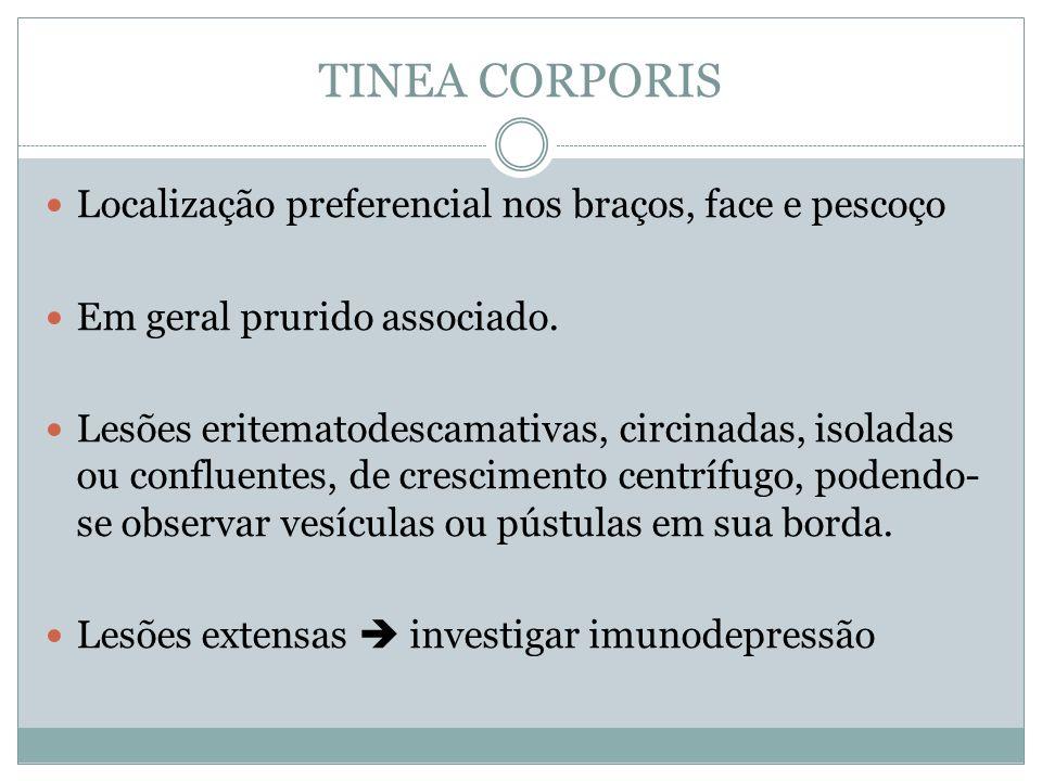 TINEA CORPORIS Localização preferencial nos braços, face e pescoço Em geral prurido associado. Lesões eritematodescamativas, circinadas, isoladas ou c