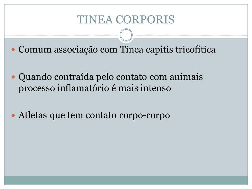 TINEA CORPORIS Comum associação com Tinea capitis tricofítica Quando contraída pelo contato com animais processo inflamatório é mais intenso Atletas q