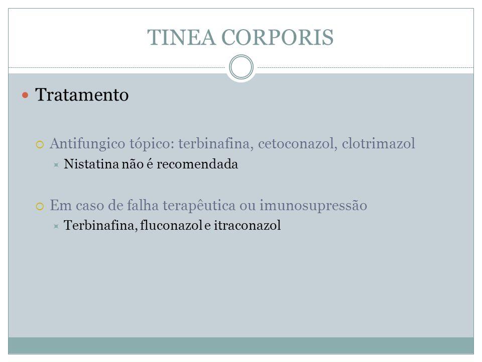Tratamento Antifungico tópico: terbinafina, cetoconazol, clotrimazol Nistatina não é recomendada Em caso de falha terapêutica ou imunosupressão Terbin