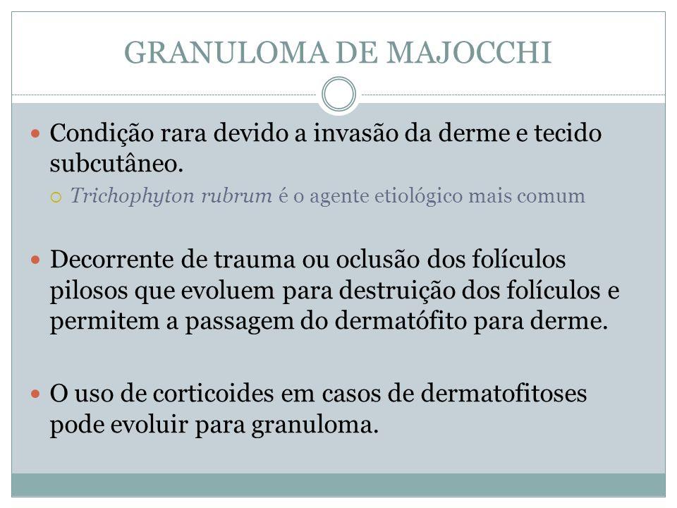 GRANULOMA DE MAJOCCHI Condição rara devido a invasão da derme e tecido subcutâneo. Trichophyton rubrum é o agente etiológico mais comum Decorrente de