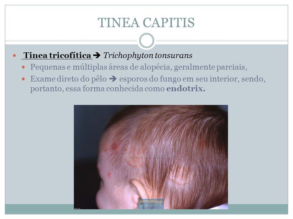 TINEA CAPITIS Tinea tricofítica Trichophyton tonsurans Pequenas e múltiplas áreas de alopécia, geralmente parciais, Exame direto do pêlo esporos do fu