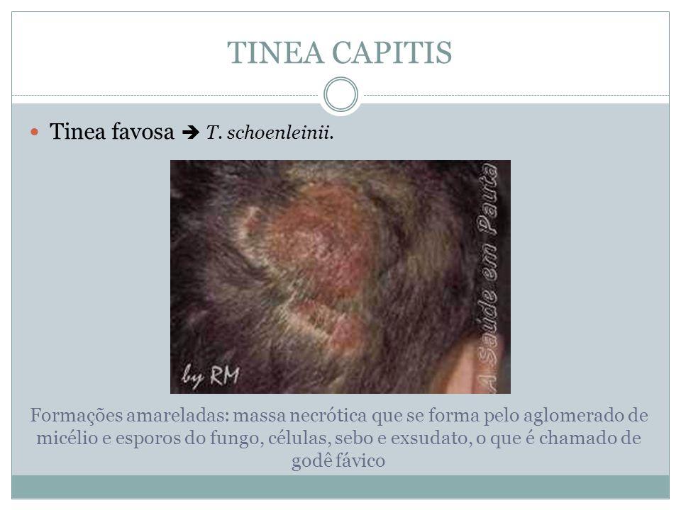 TINEA CAPITIS Tinea microspórica Microsporum canis Caracteriza-se por poucas e grandes áreas de alopécia.
