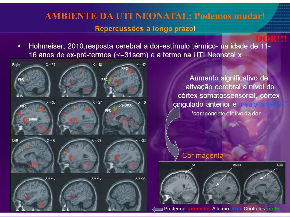 Hohmeiser, 2010:resposta cerebral a dor-estímulo térmico- na idade de 11- 16 anos de ex-pré-termos (<=31sem) e a termo na UTI Neonatal x Controles- RM