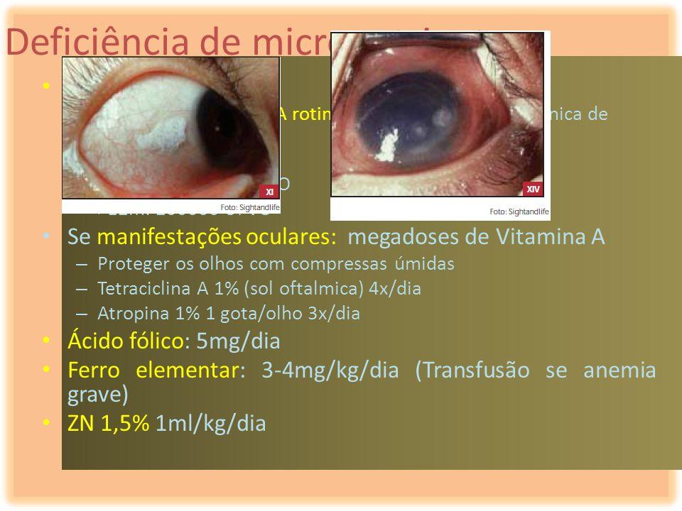 Deficiência de micronutrientes Tratamento – Administração de vit A rotineira, no 1º dia, em dose única de acordo com a idade – <6m: 50000UI VO – 6m-12