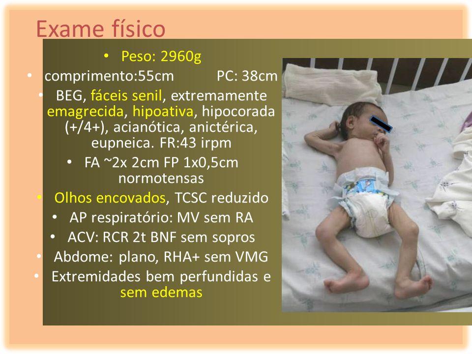 Exame físico Peso: 2960g comprimento:55cm PC: 38cm BEG, fáceis senil, extremamente emagrecida, hipoativa, hipocorada (+/4+), acianótica, anictérica, e