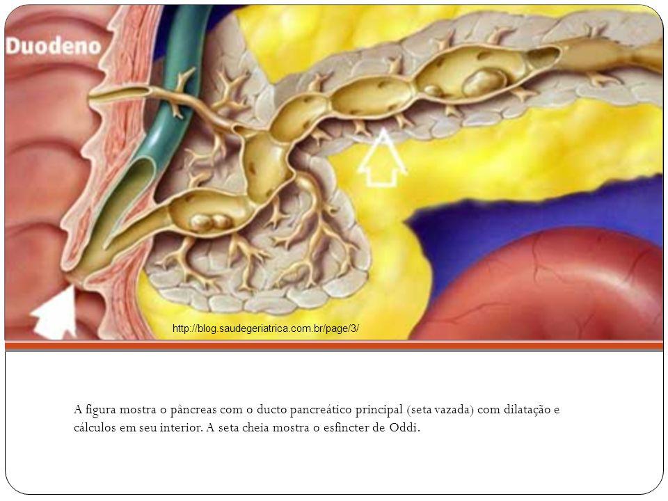 Hipótese Diagnóstica: Pancreatite por anomalias congênitas do sistema pancreático ou do ducto biliar(?) Pancreatite idiopática (?) Pancreatite familiar crônica agudizada (?) Trauma (Síndrome do Tanque) (?) Evolução/Conduta: Paciente permaneceu internado na enfermaria de pediatria do HRAS por 6 dias, inicialmente em dieta zero, progredindo para hipograxa, recebendo hidratação venosa 82% holliday, além de analgesia.