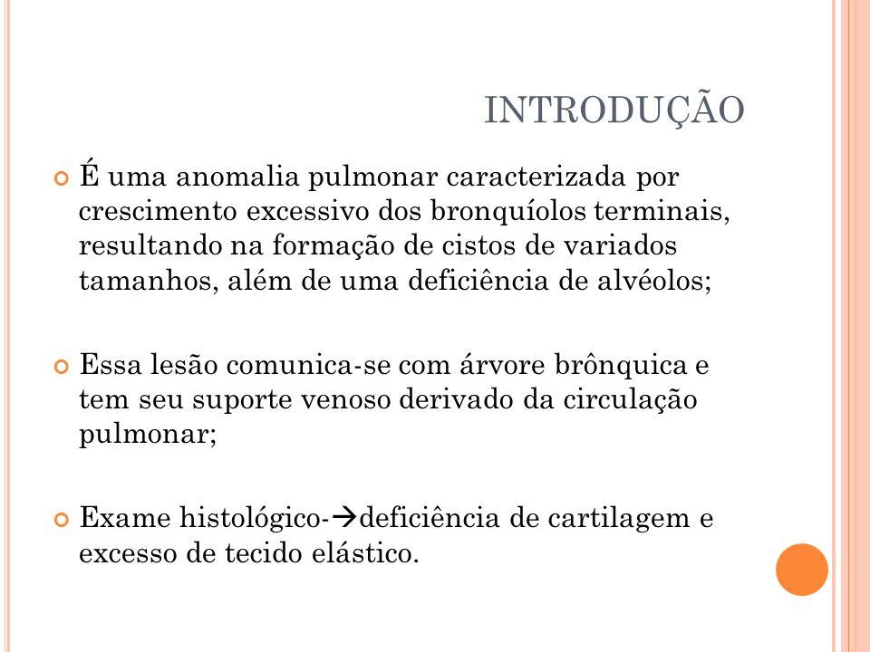 2- de origem brônquica (15-20% dos casos).