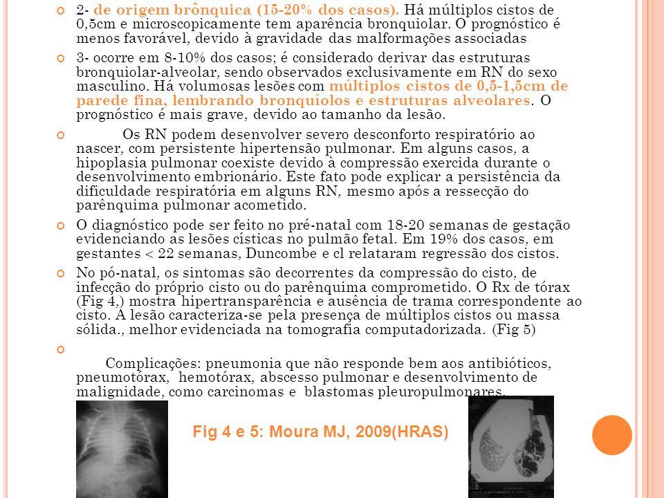 2- de origem brônquica (15-20% dos casos). Há múltiplos cistos de 0,5cm e microscopicamente tem aparência bronquiolar. O prognóstico é menos favorável