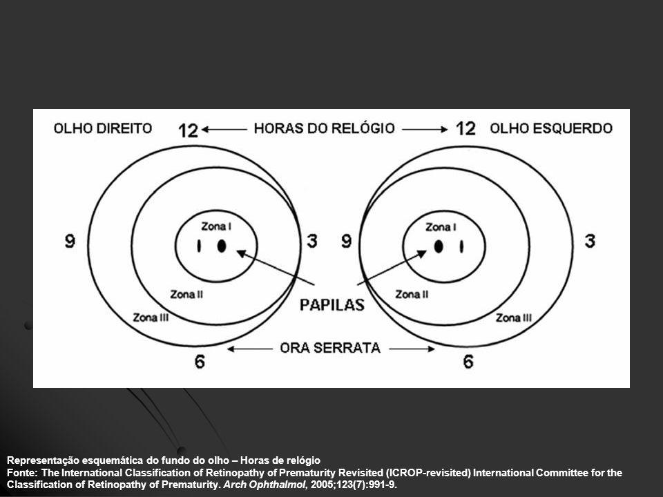 Representação esquemática do fundo do olho – Horas de relógio Fonte: The International Classification of Retinopathy of Prematurity Revisited (ICROP-r