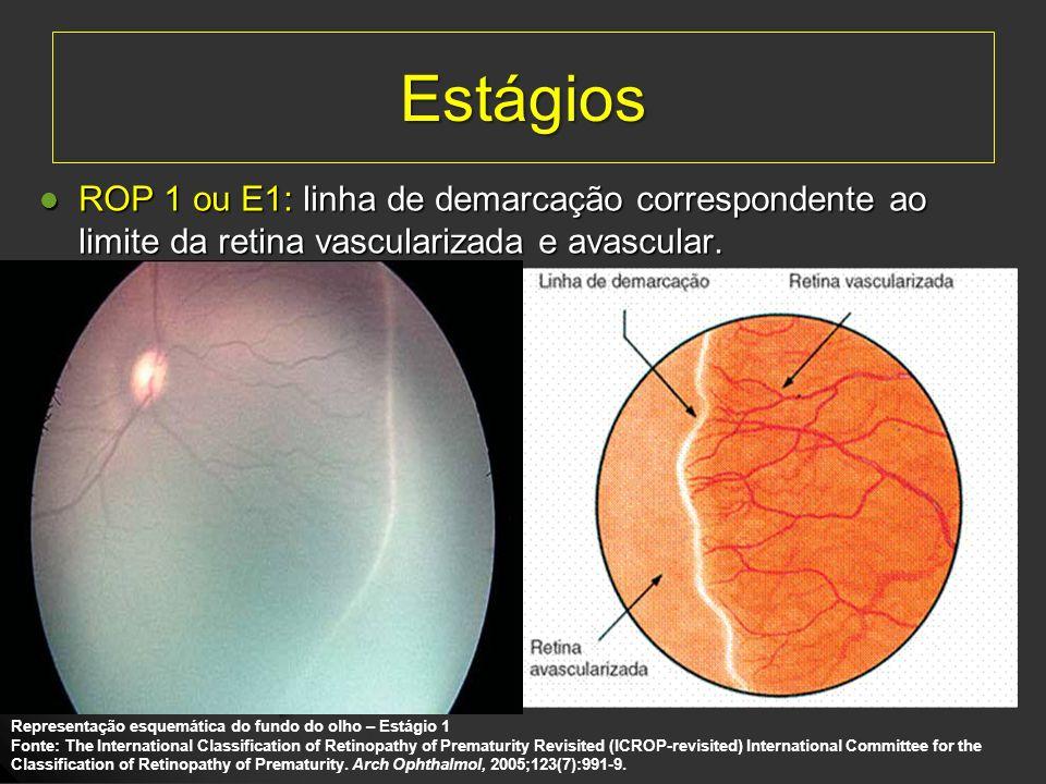 Estágios ROP 1 ou E1: linha de demarcação correspondente ao limite da retina vascularizada e avascular. ROP 1 ou E1: linha de demarcação correspondent