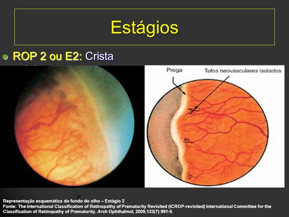 Estágios ROP 2 ou E2: Crista retiniana. ROP 2 ou E2: Crista retiniana. Representação esquemática do fundo do olho – Estágio 2 Fonte: The International