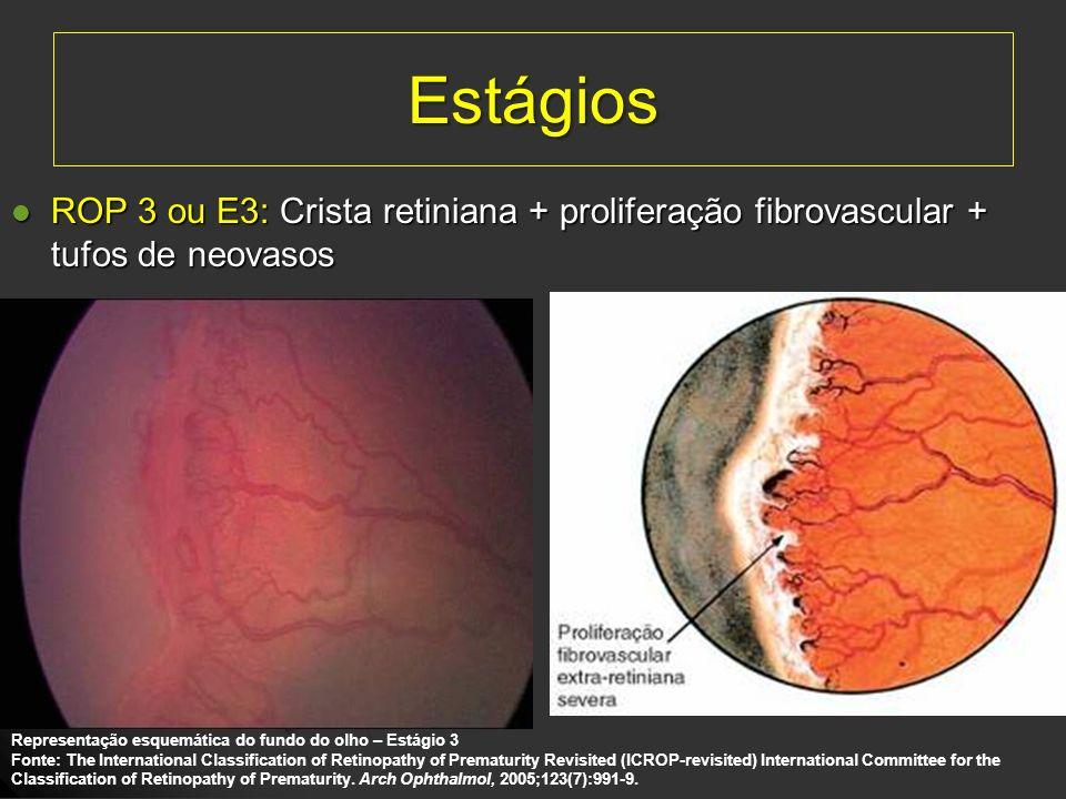 Estágios ROP 3 ou E3: Crista retiniana + proliferação fibrovascular + tufos de neovasos ROP 3 ou E3: Crista retiniana + proliferação fibrovascular + t