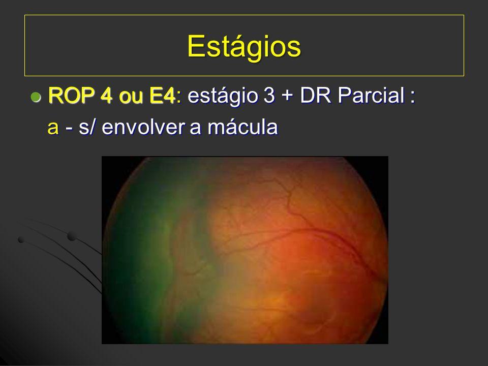 Estágios ROP 4 ou E4: estágio 3 + DR Parcial : ROP 4 ou E4: estágio 3 + DR Parcial : a - s/ envolver a mácula a - s/ envolver a mácula