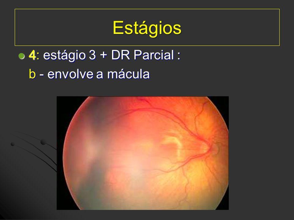 Estágios 4: estágio 3 + DR Parcial : 4: estágio 3 + DR Parcial : b - envolve a mácula