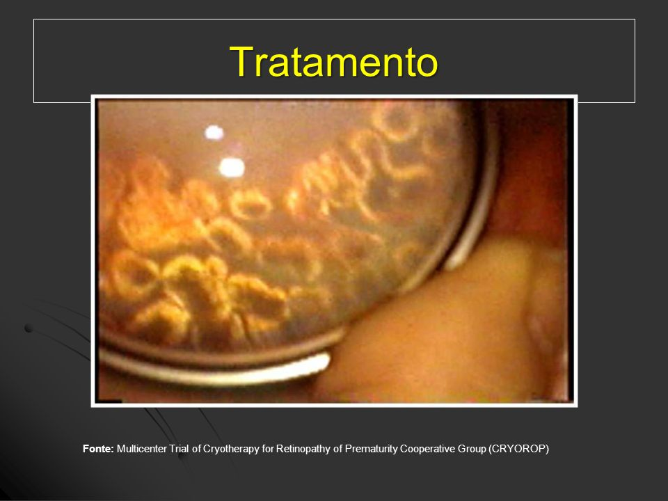 Tratamento Fonte: Multicenter Trial of Cryotherapy for Retinopathy of Prematurity Cooperative Group (CRYOROP)