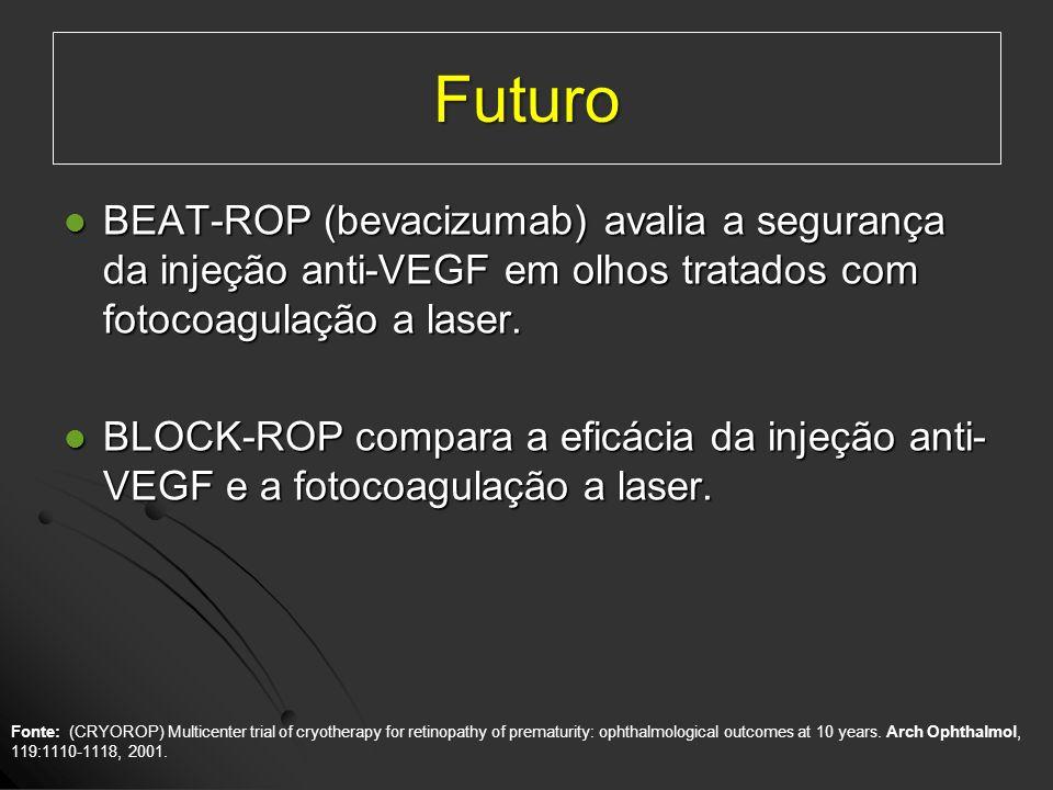 Futuro BEAT-ROP (bevacizumab) avalia a segurança da injeção anti-VEGF em olhos tratados com fotocoagulação a laser. BEAT-ROP (bevacizumab) avalia a se