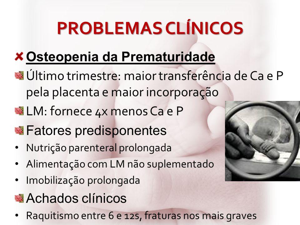 PROBLEMAS CLÍNICOS Osteopenia da Prematuridade Último trimestre: maior transferência de Ca e P pela placenta e maior incorporação LM: fornece 4x menos