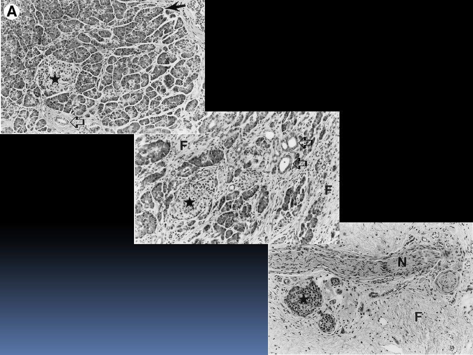 Diagnóstico Exames laboratoriais: Os resultados dos exames laboratoriais de rotina são geralmente normais em pacientes com pancreatite crônica, com exceção dos níveis de amilase e lipase séricas.
