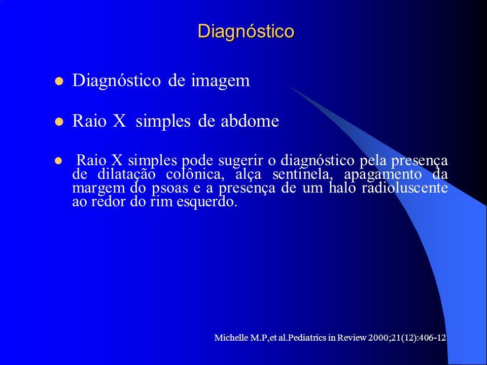 Diagnóstico Diagnóstico Diagnóstico de imagem Raio X simples de abdome Raio X simples pode sugerir o diagnóstico pela presença de dilatação colônica,