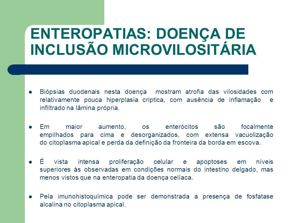 ENTEROPATIAS: DOENÇA DE INCLUSÃO MICROVILOSITÁRIA A biópsia duodenal pode inicialmente mostrar atrofia vlositária total, porém posteriormente as vilosidade podem vir a apresentar características praticamente normais à microscopia óptica comum.