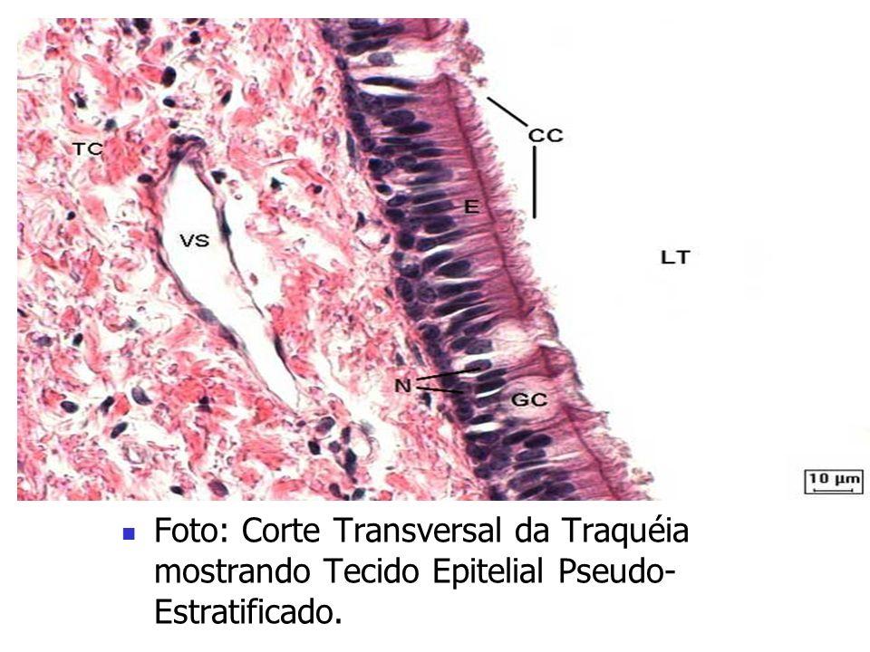 Histologia Animal Tipos de Tecido Epitelial: 2.