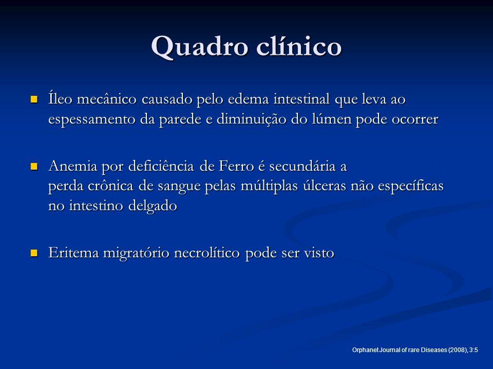 Quadro clínico Íleo mecânico causado pelo edema intestinal que leva ao espessamento da parede e diminuição do lúmen pode ocorrer Íleo mecânico causado