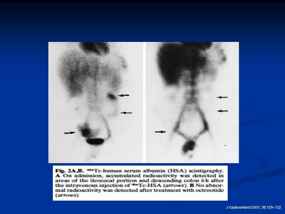 J Gastroenterol 2001; 36:129–132
