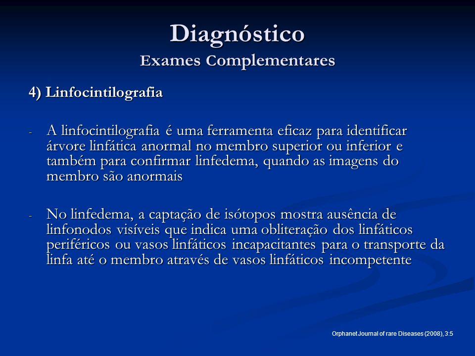 Diagnóstico E xames C omplementares 4) Linfocintilografia - A linfocintilografia é uma ferramenta eficaz para identificar árvore linfática anormal no