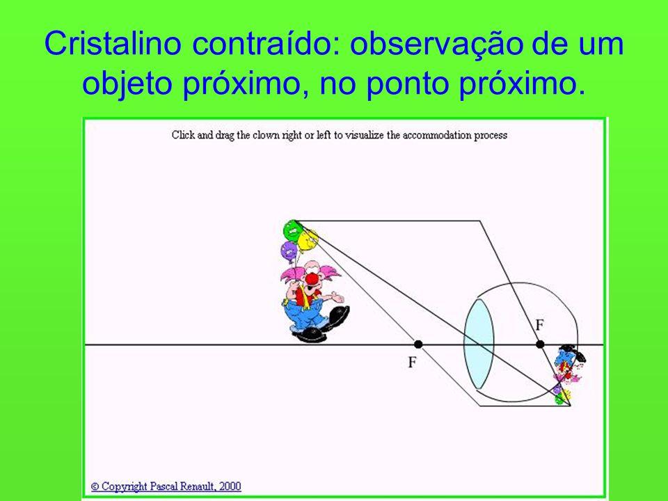 Cristalino contraído: observação de um objeto próximo, no ponto próximo.