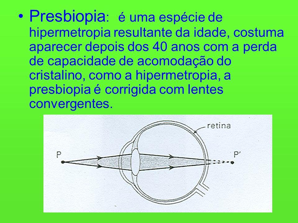 Presbiopia : é uma espécie de hipermetropia resultante da idade, costuma aparecer depois dos 40 anos com a perda de capacidade de acomodação do cristalino, como a hipermetropia, a presbiopia é corrigida com lentes convergentes.