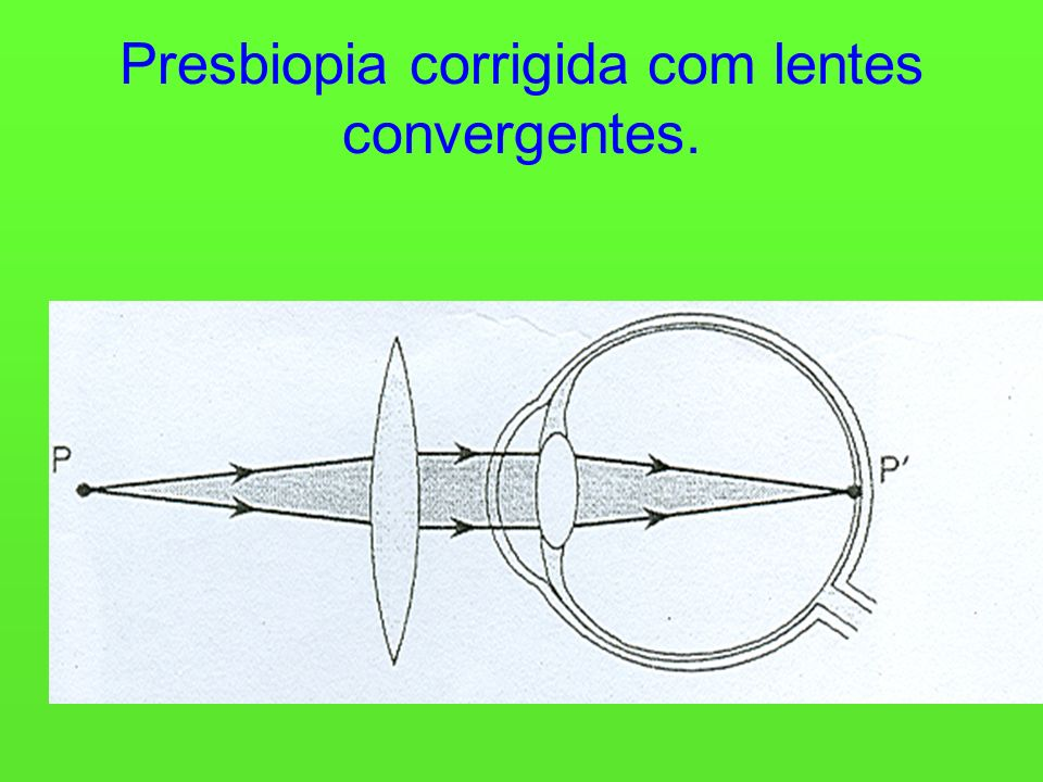 Presbiopia corrigida com lentes convergentes.