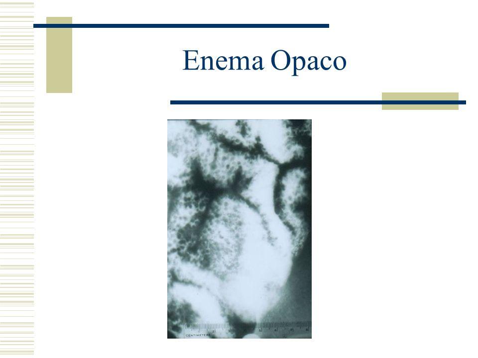 Enema Opaco
