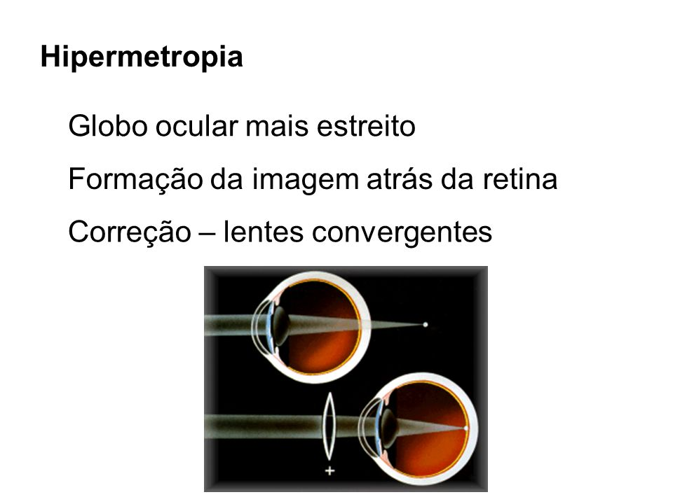 Hipermetropia Globo ocular mais estreito Formação da imagem atrás da retina Correção – lentes convergentes