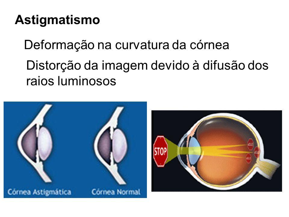 Astigmatismo Deformação na curvatura da córnea Distorção da imagem devido à difusão dos raios luminosos