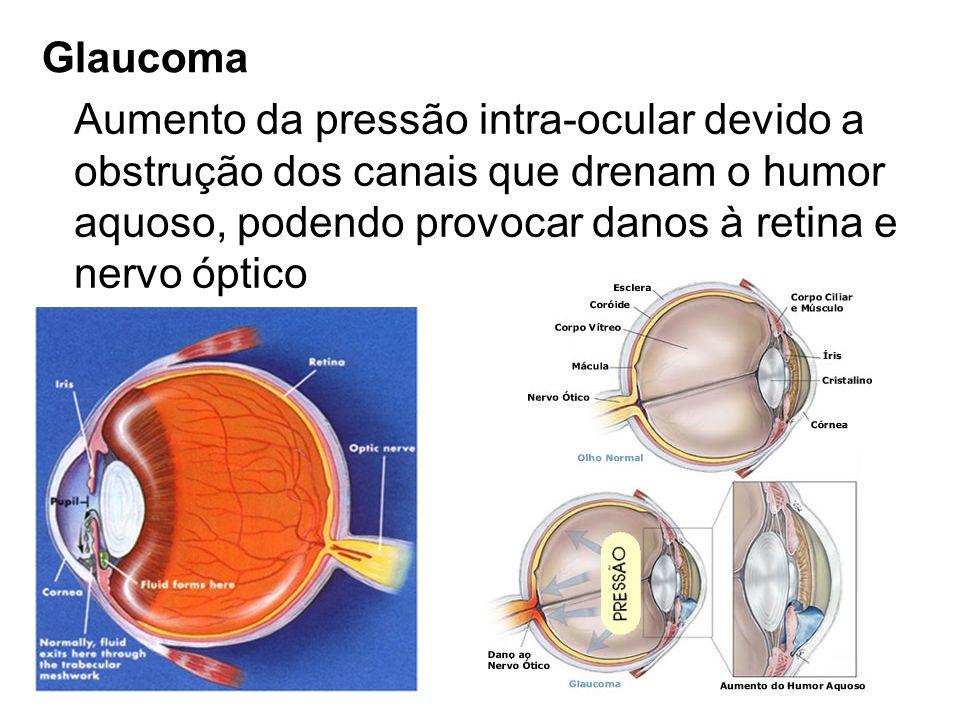 Glaucoma Aumento da pressão intra-ocular devido a obstrução dos canais que drenam o humor aquoso, podendo provocar danos à retina e nervo óptico