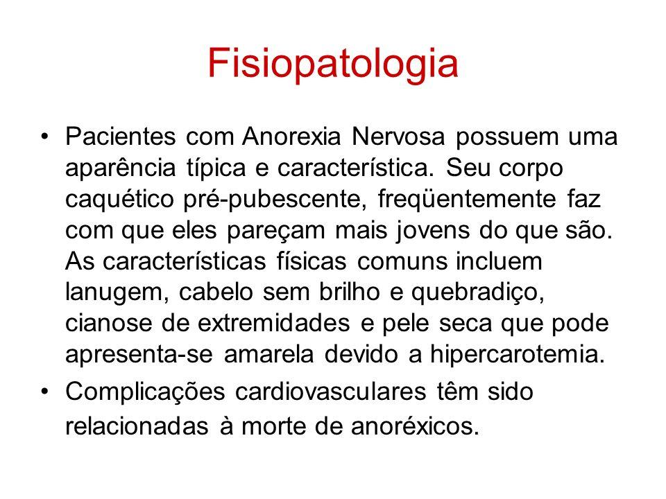 Fisiopatologia Pacientes com Anorexia Nervosa possuem uma aparência típica e característica. Seu corpo caquético pré-pubescente, freqüentemente faz co