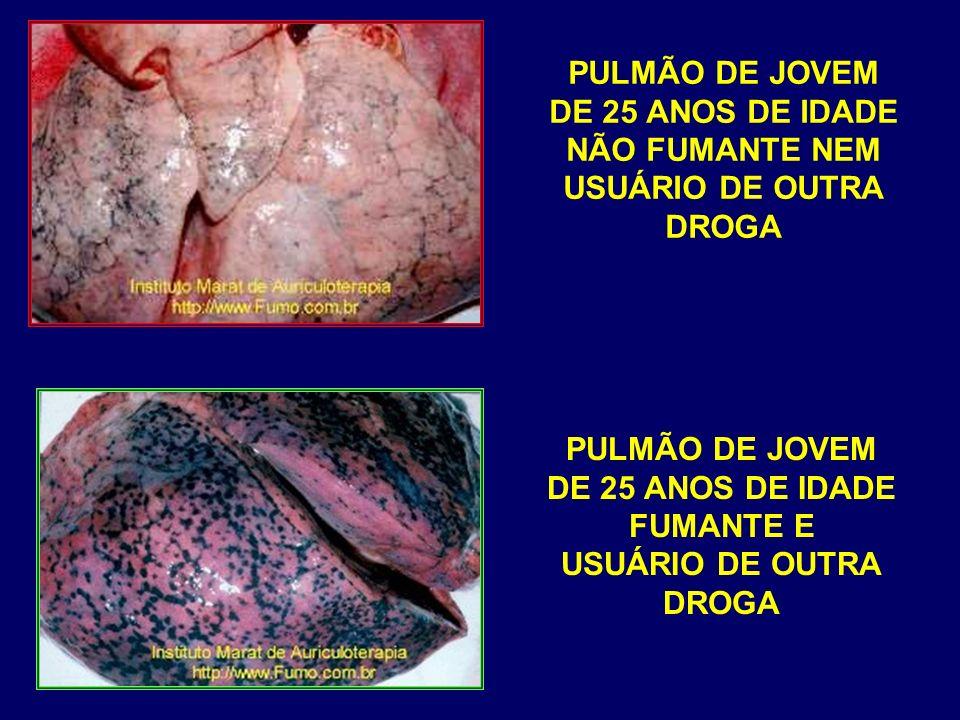 PULMÃO DE JOVEM DE 25 ANOS DE IDADE NÃO FUMANTE NEM USUÁRIO DE OUTRA DROGA PULMÃO DE JOVEM DE 25 ANOS DE IDADE FUMANTE E USUÁRIO DE OUTRA DROGA