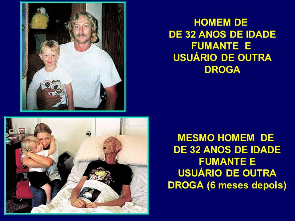 HOMEM DE DE 32 ANOS DE IDADE FUMANTE E USUÁRIO DE OUTRA DROGA MESMO HOMEM DE DE 32 ANOS DE IDADE FUMANTE E USUÁRIO DE OUTRA DROGA (6 meses depois)