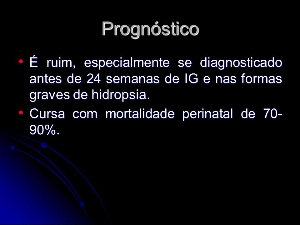 Prognóstico É ruim, especialmente se diagnosticado antes de 24 semanas de IG e nas formas graves de hidropsia. É ruim, especialmente se diagnosticado