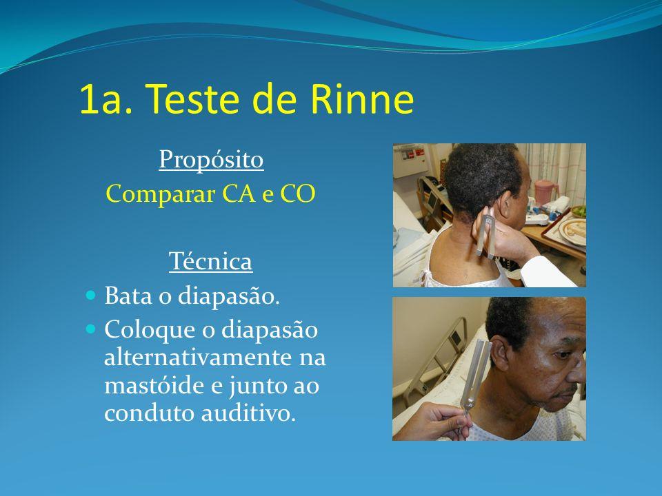 1a. Teste de Rinne Propósito Comparar CA e CO Técnica Bata o diapasão. Coloque o diapasão alternativamente na mastóide e junto ao conduto auditivo.