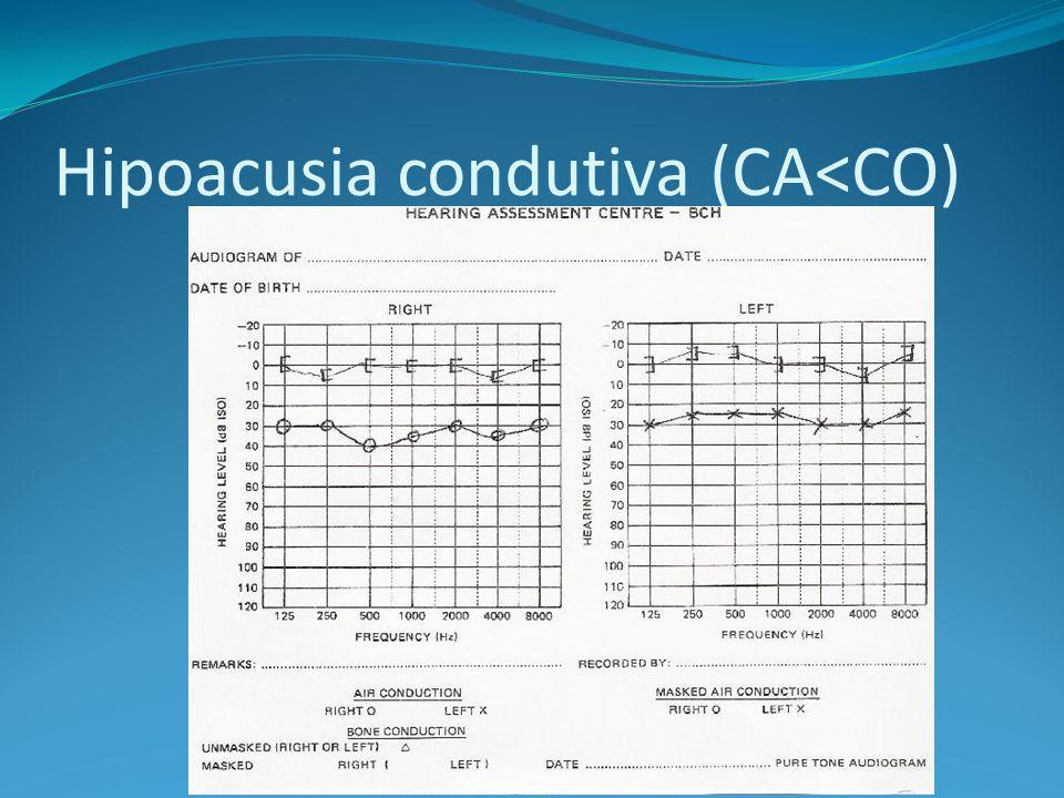 Hipoacusia condutiva (CA<CO)