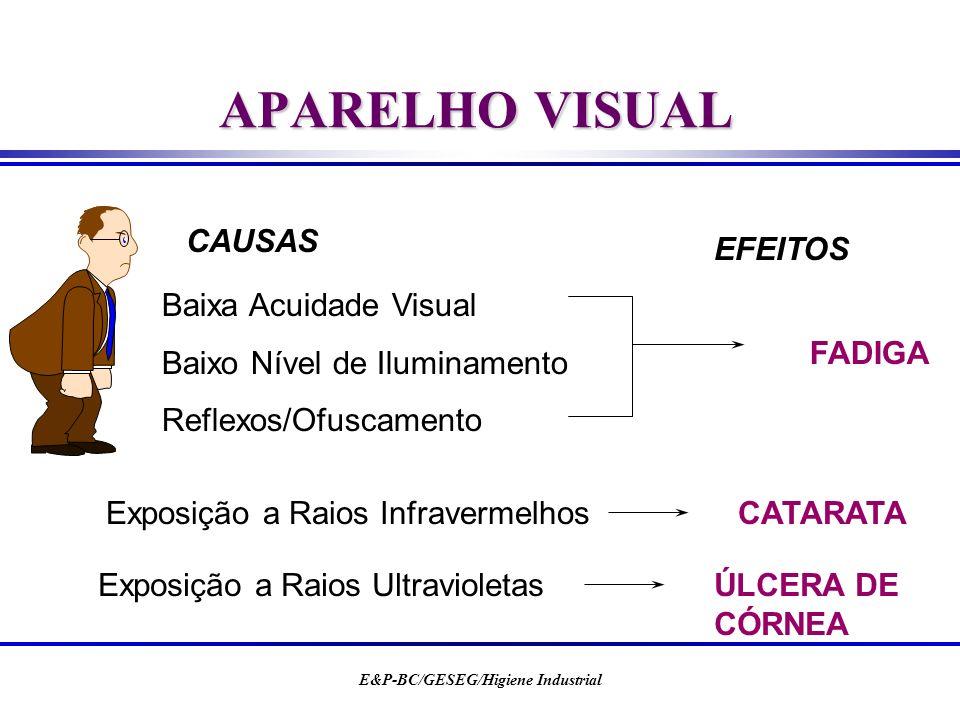 E&P-BC/GESEG/Higiene Industrial APARELHO VISUAL CAUSAS EFEITOS Exposição a Raios InfravermelhosCATARATA Exposição a Raios UltravioletasÚLCERA DE CÓRNE