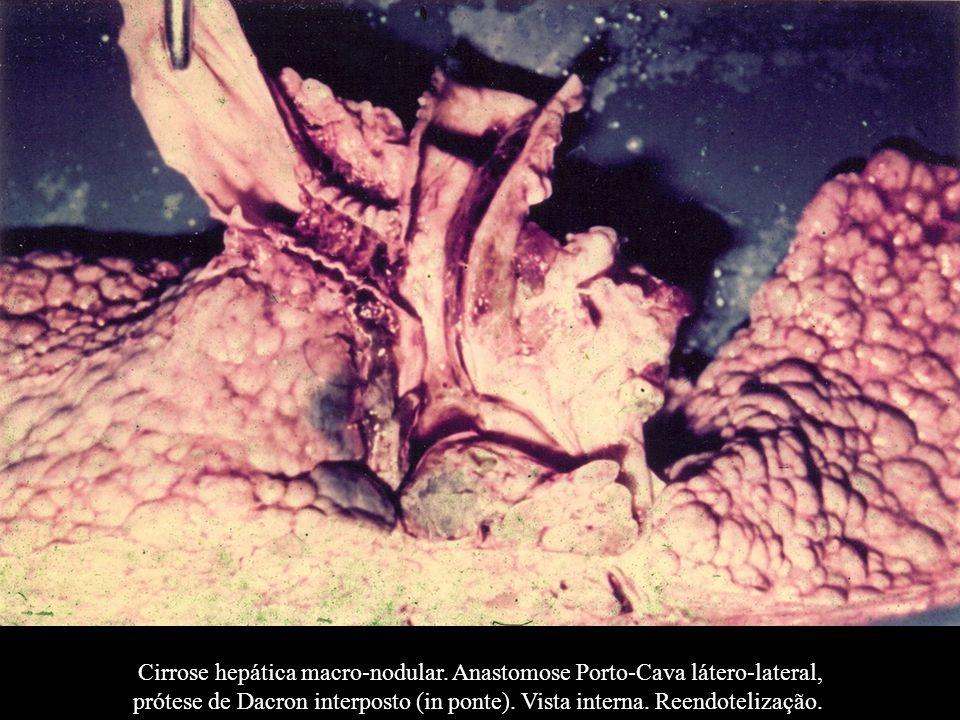 Cirrose hepática macro-nodular. Anastomose Porto-Cava látero-lateral, prótese de Dacron interposto (in ponte). Vista interna. Reendotelização.
