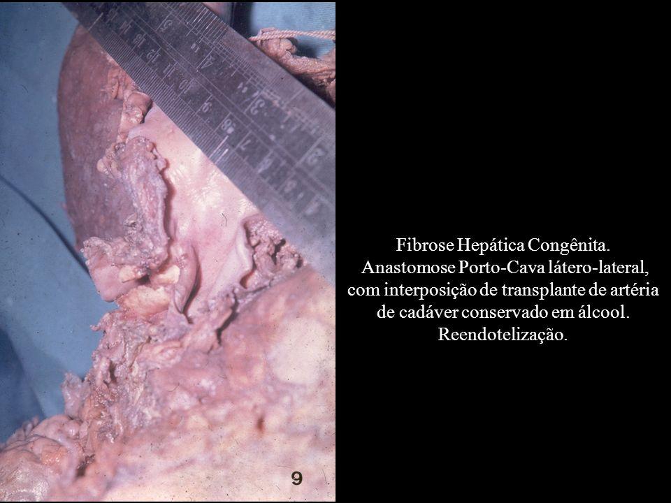 Fibrose Hepática Congênita. Anastomose Porto-Cava látero-lateral, com interposição de transplante de artéria de cadáver conservado em álcool. Reendote