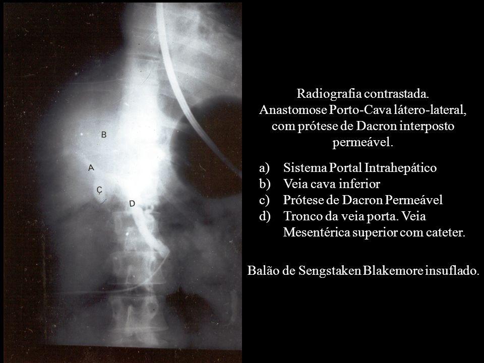 Radiografia contrastada. Anastomose Porto-Cava látero-lateral, com prótese de Dacron interposto permeável. Balão de Sengstaken Blakemore insuflado. a)