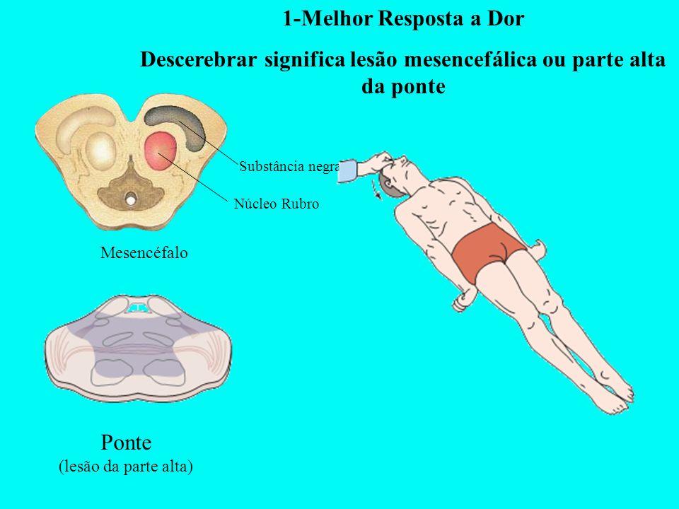 1-Melhor Resposta a Dor Descerebrar significa lesão mesencefálica ou parte alta da ponte Mesencéfalo Ponte (lesão da parte alta) Substância negra Núcl