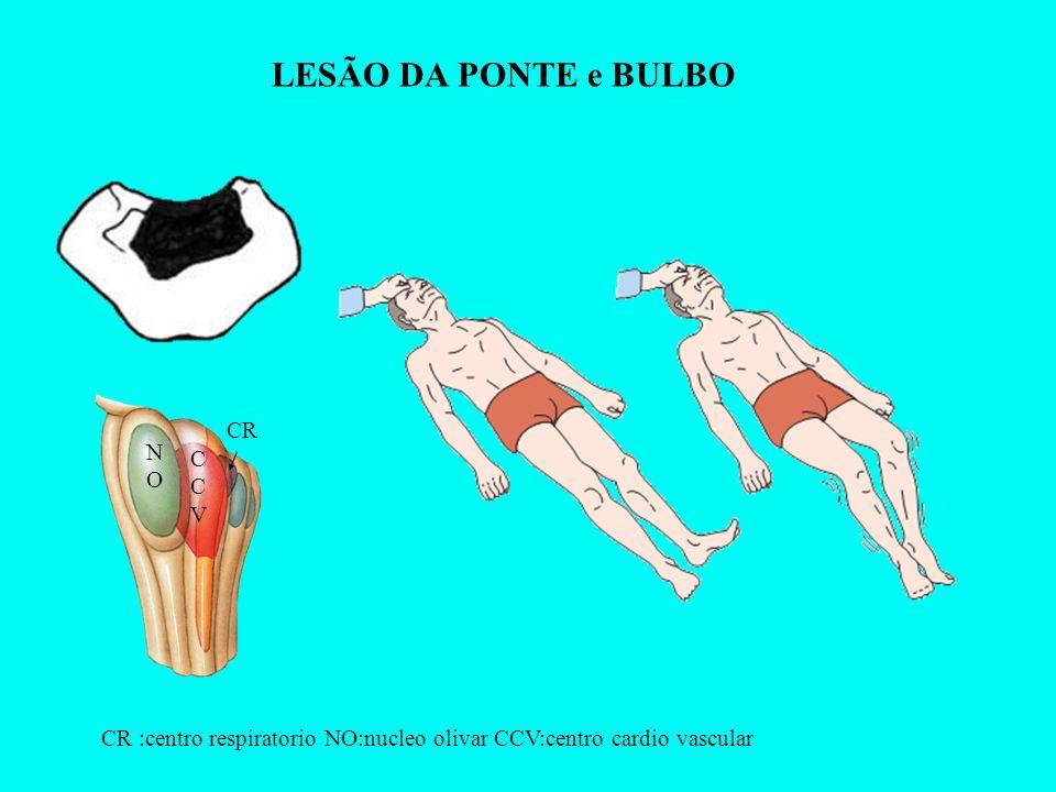 LESÃO DA PONTE e BULBO CR CCVCCV NONO CR :centro respiratorio NO:nucleo olivar CCV:centro cardio vascular