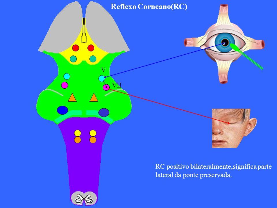 V VII Reflexo Corneano(RC) RC positivo bilateralmente,significa parte lateral da ponte preservada.