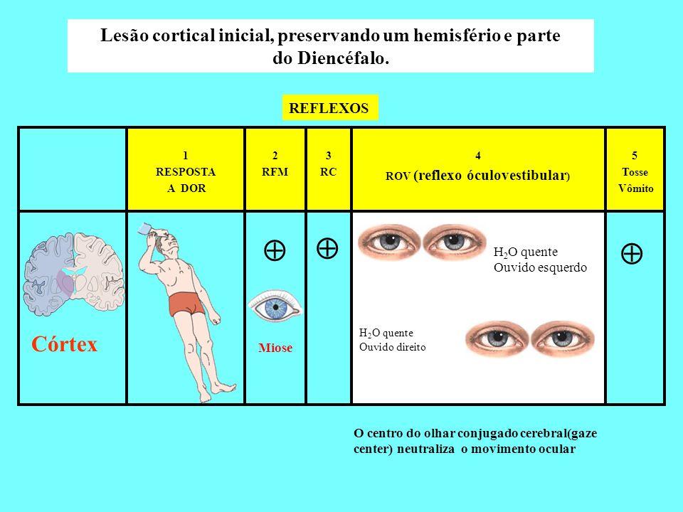 5 Tosse Vômito 4 ROV (reflexo óculovestibular ) 3 RC 2 RFM 1 RESPOSTA A DOR Córtex Lesão cortical inicial, preservando um hemisfério e parte do Diencé