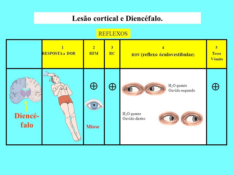 5 Tosse Vômito 4 ROV (reflexo óculovestibular ) 3 RC 2 RFM 1 RESPOSTA a DOR Lesão cortical e Diencéfalo. Miose REFLEXOS Diencé- falo H 2 O quente Ouvi